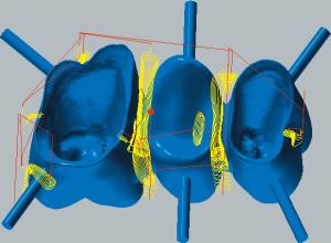 Kobalt-Chrom Restmaterialbearbeitung des äußeren Bereichs der Kavitätenseite