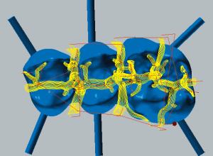 Cobalt-chrome Restmachining occlusal side