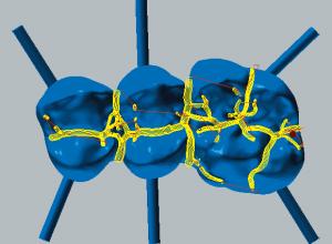 Cobalt-chrome Fissure machining