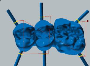 Cobalt-chrome Cut / reduce connectors