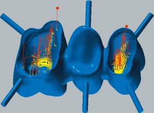 Kobalt-Chrom Restmeterialbearbeitung der Kavität