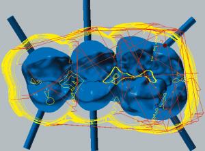 Kobalt-Chrom Schruppen der Okklusalseite