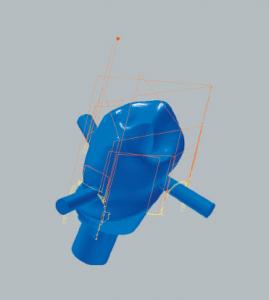 Titanabutment Restmaterialbearbeitung der Oklusalseite