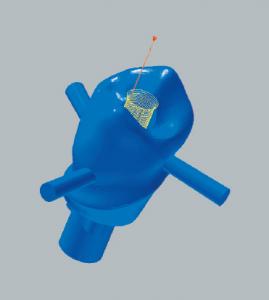 Titanabutment Schraubenkanalbearbeitung der Okklusalseite