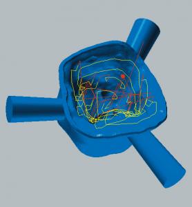 Zirkonoxid und PMMA / PEEK / Wachs Restmaterialbearbeitung der Kavitätenseite