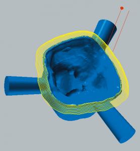 Zirkonoxid und PMMA / PEEK / Wachs Schlichten der Präparationsgrenze