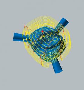 Zirkonoxid und PMMA / PEEK / Wachs Schruppen der Okklusalseite